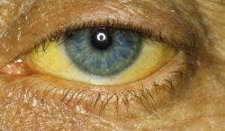 Причины желтых белков глаз