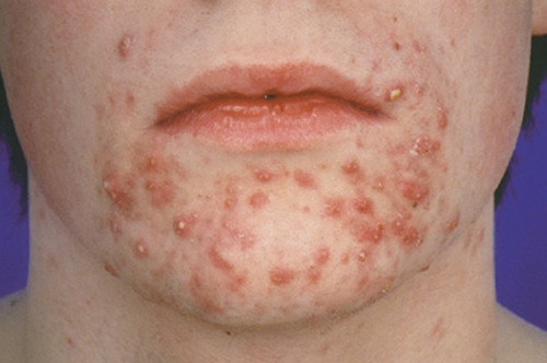 Rosacea in Adults: Condition, Treatments, and Pictures ...
