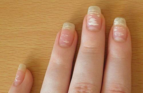 почему белые ногти