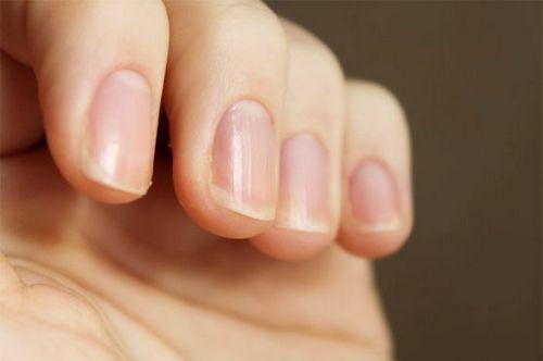 Грибок на ногте ноги описание