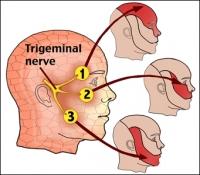 Воспаление тройничного нерва: симптомы